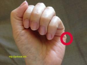 汗を止めるツボー指
